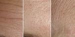 SIGGRAPH 2015 - Recherche : déformation des microstructures de la peau