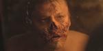 The Frankenstein Chronicles : un breakdown pour la série TV