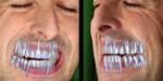 Recherche : des dents pour vos doublures numériques