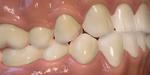 Une denture avec gencives à télécharger